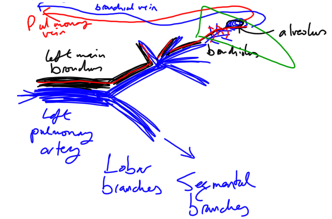 Pulmonary artery branches anatomy
