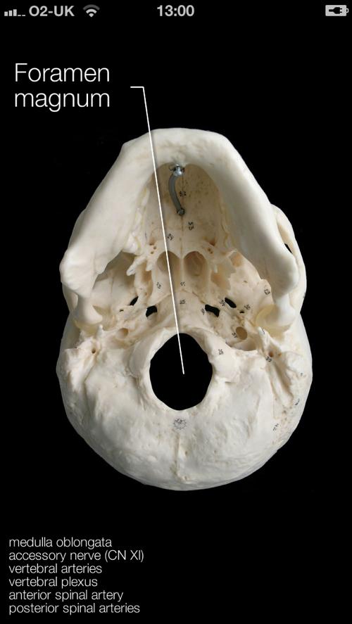 Skull Iphone 4
